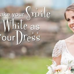 Beacon Place Dental Group Announces Wedding Promotion