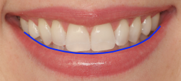 "Do you have the right ""arc"" in your smile?"