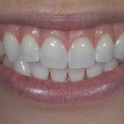 How to close the gap between my teeth?